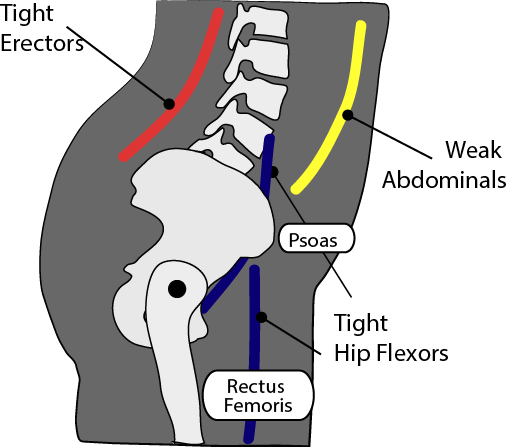 Illustration of anterior pelvic tile: an issue in the sport of Weightlifting